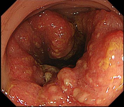 進行大腸がん